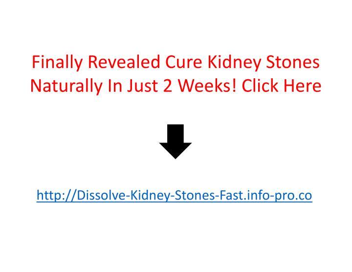 Finally Revealed Cure Kidney Stones