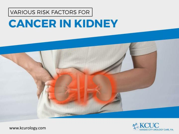 Various Risk Factors for Cancer in Kidney