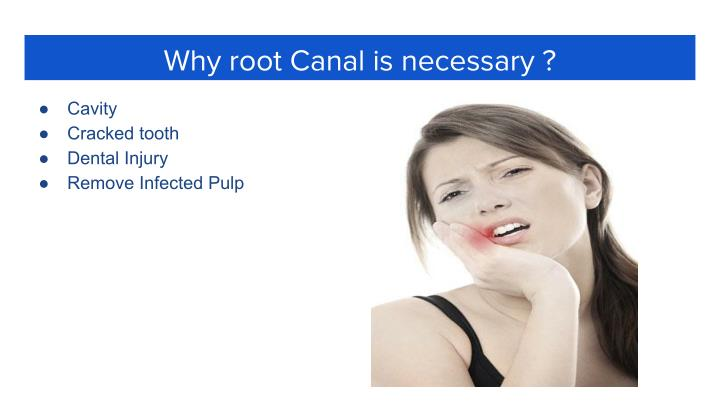 Why root Canal is necessary ?