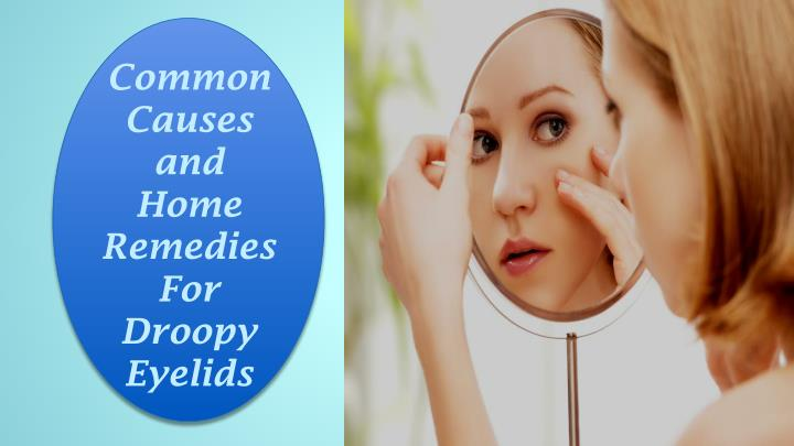Common Causes and Home Remedies For Droopy Eyelids