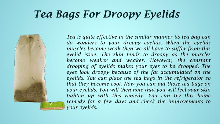Tea Bags For Droopy Eyelids