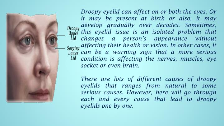 Droopy eyelid can affect on or both the eyes. Or it may be present at birth or also, it may develop gradually over decades. Sometimes, this eyelid issue is an isolated problem that changes a person's appearance without affecting their health or vision. In other cases, it can be a warning sign that a more serious condition is affecting the nerves, muscles, eye socket or even brain.