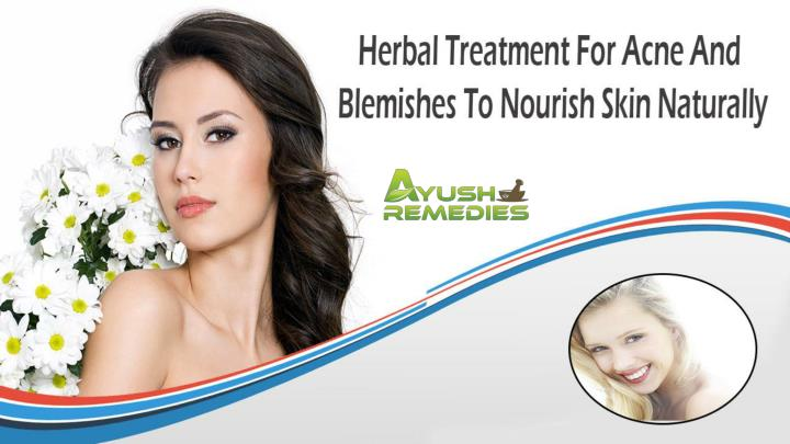 Herbal treatment for acne and blemishes to nourish skin naturally