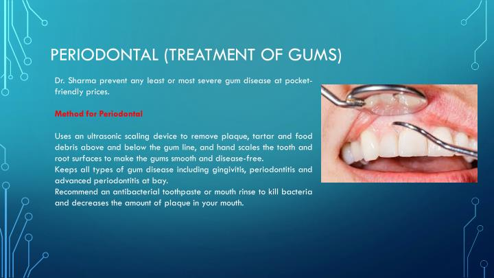 Periodontal (Treatment of Gums)