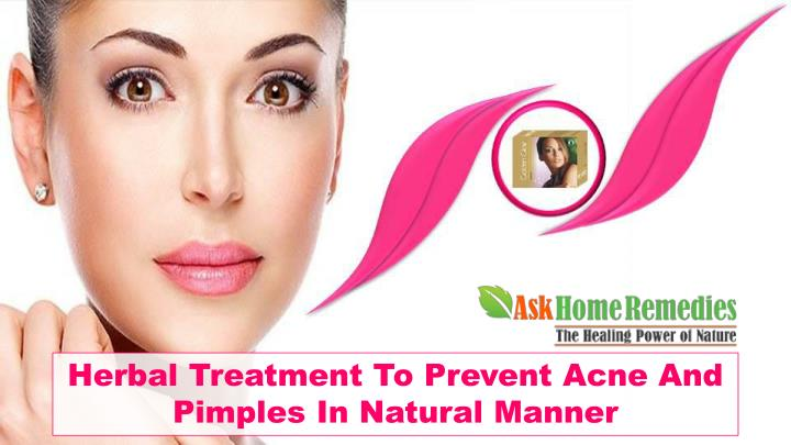 Herbal Treatment To Prevent Acne And Pimples In Natural Manner