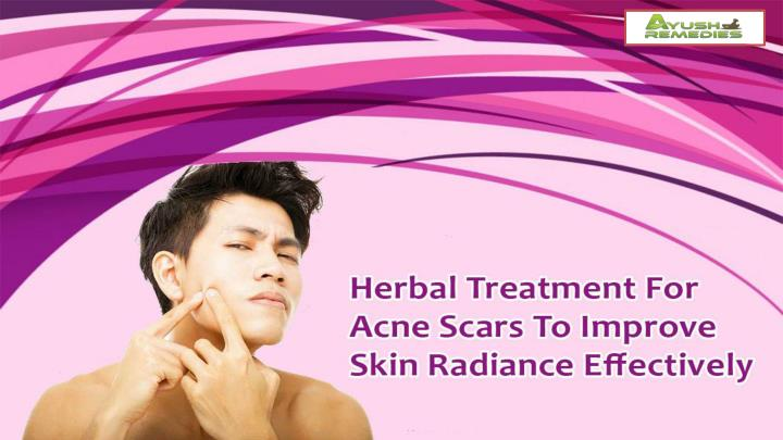 Herbal treatment for acne scars to improve skin radiance effectively