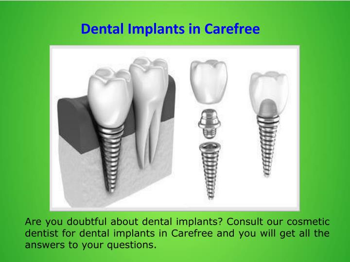 Dental Implants in Carefree