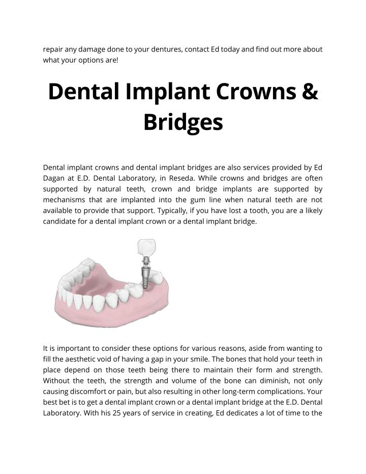 repair any damage done to your dentures, contact Ed today and find out more about