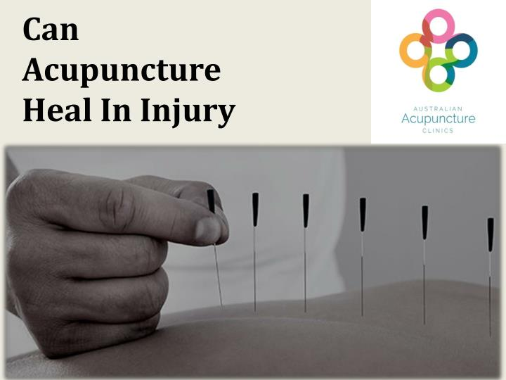 Can Acupuncture Heal In Injury