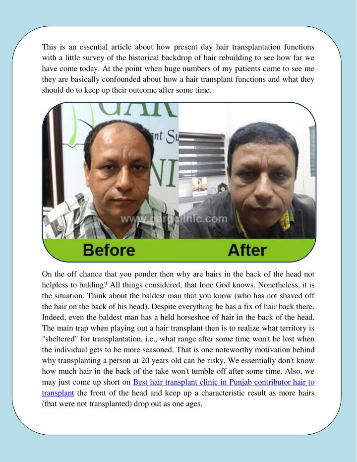 This is an essential article about how present day hair transplantation functions