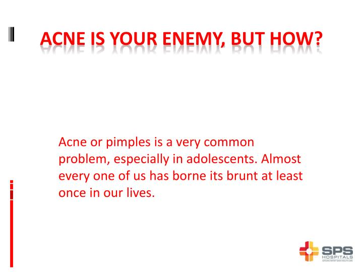 Acne is your enemy but how