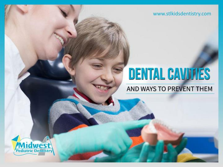 Dental cavities and ways to prevent them