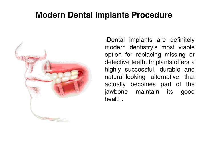 Modern Dental Implants Procedure
