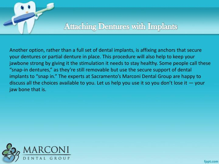 Attaching Dentures with Implants