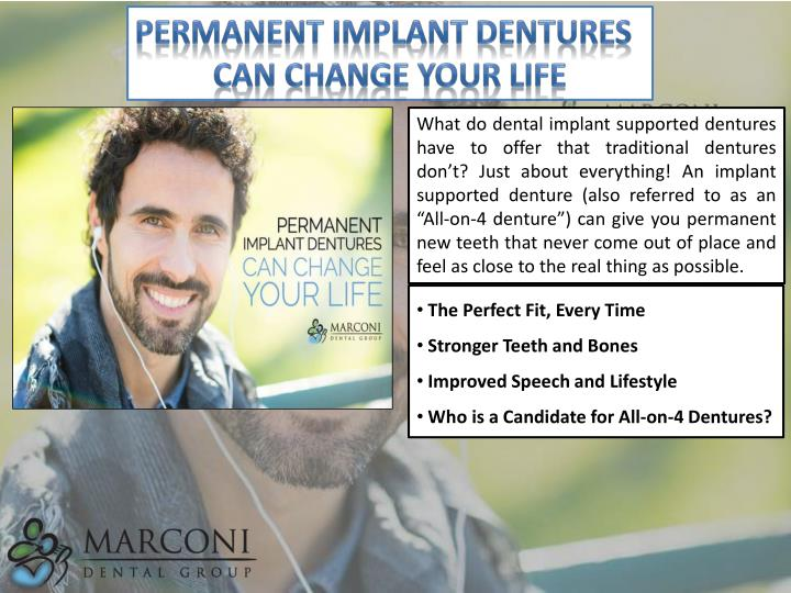 Permanent Implant Dentures