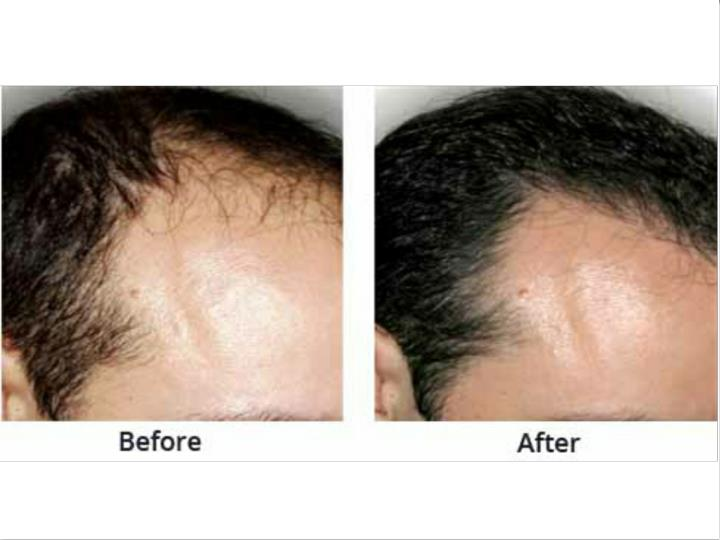 Bio fue hair transplant in new delhi