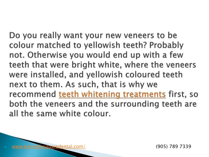 Do you really want your new veneers to be