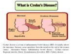 what is crohn s disease