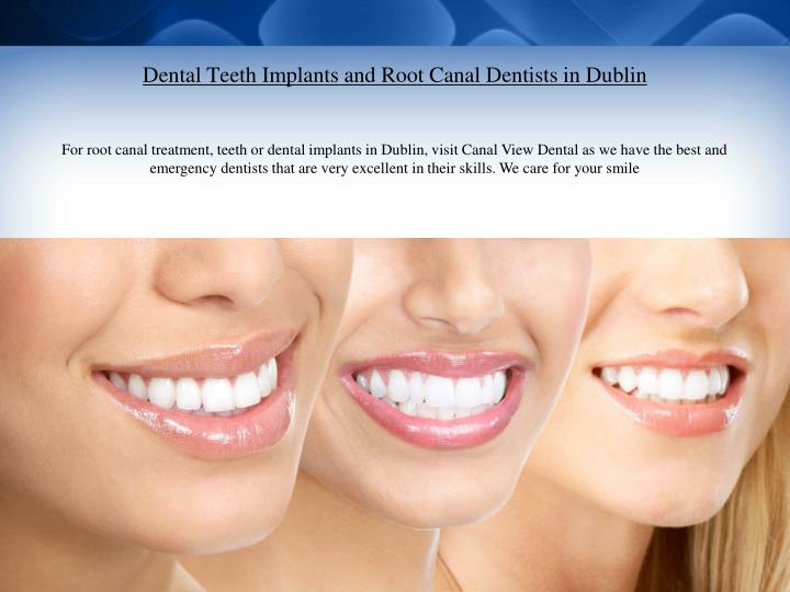 Dental teeth implants and root canal dentists in dublin1