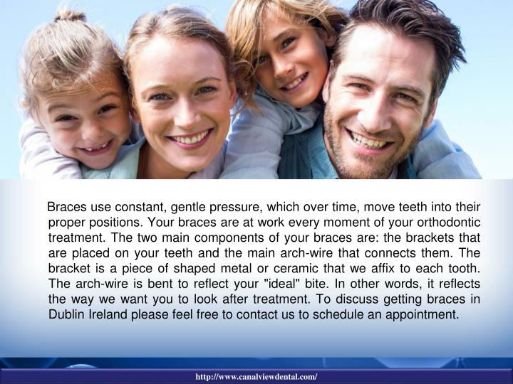 "Braces use constant, gentle pressure, which over time, move teeth into their proper positions. Your braces are at work every moment of your orthodontic treatment. The two main components of your braces are: the brackets that are placed on your teeth and the main arch-wire that connects them. The bracket is a piece of shaped metal or ceramic that we affix to each tooth. The arch-wire is bent to reflect your ""ideal"" bite. In other words, it reflects the way we want you to look after treatment. To discuss getting braces in Dublin Ireland please feel free to contact us to schedule an appointment."