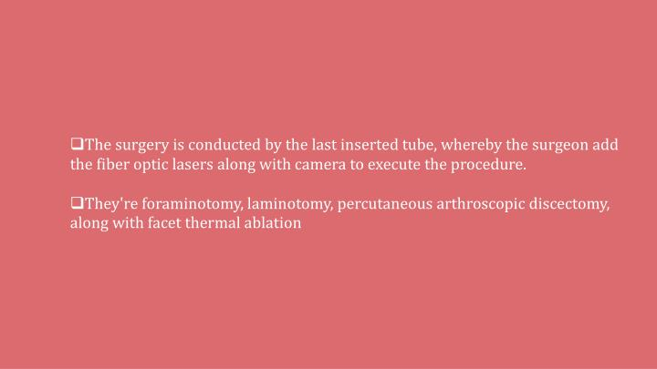 The surgery is conducted by the last inserted tube, whereby the surgeon add the fiber optic lasers along with camera to execute the procedure.