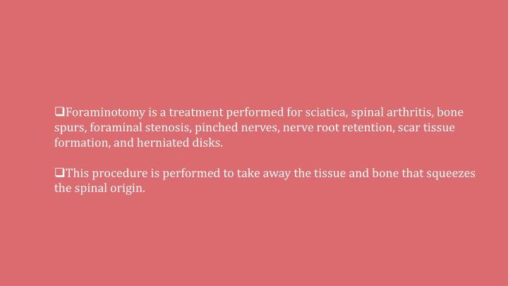 Foraminotomy