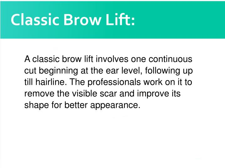Classic Brow Lift: