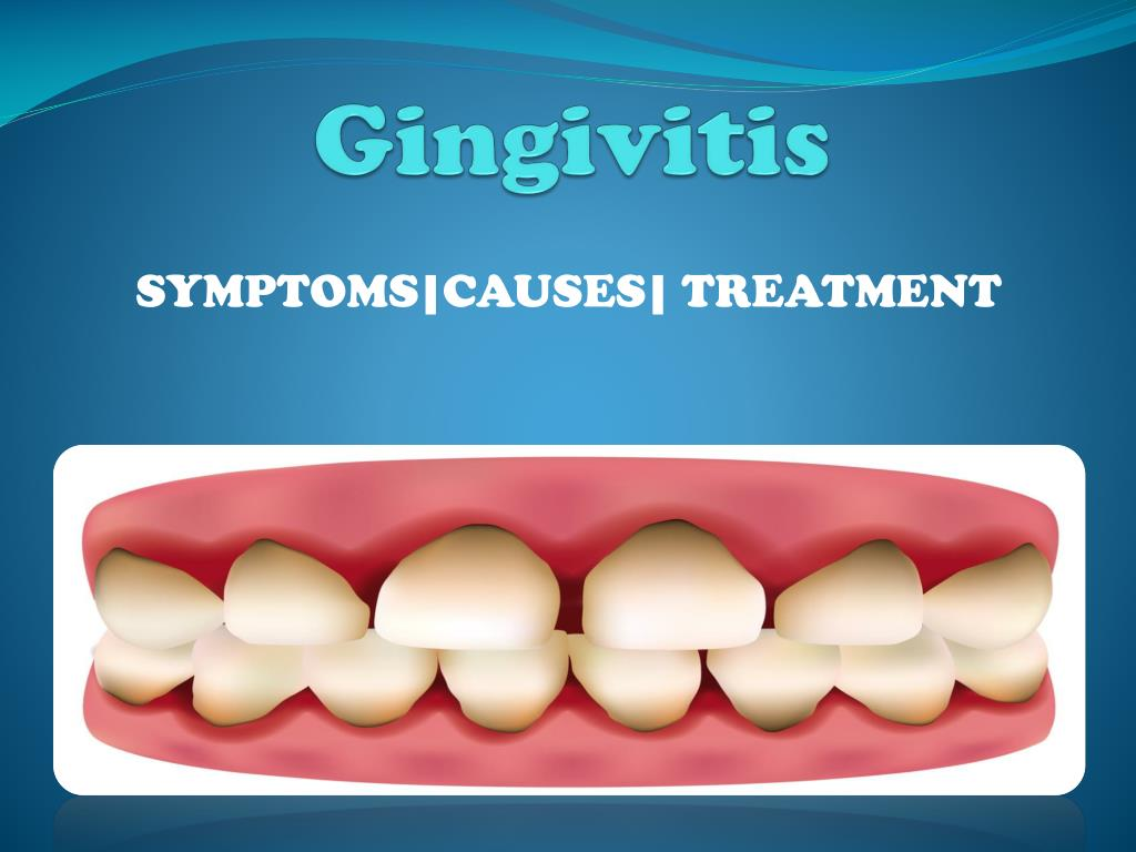 Ointment for gums from inflammation. Treatment of gingivitis