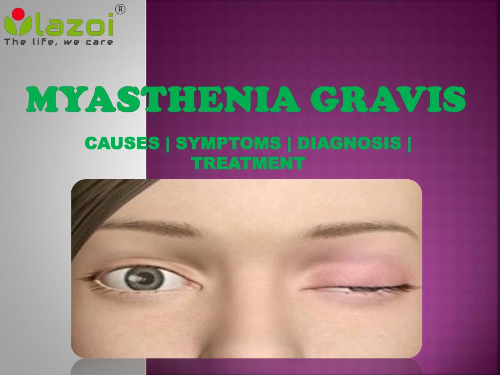 Myasthenia - what it is Symptoms, causes and treatment of myasthenia 12