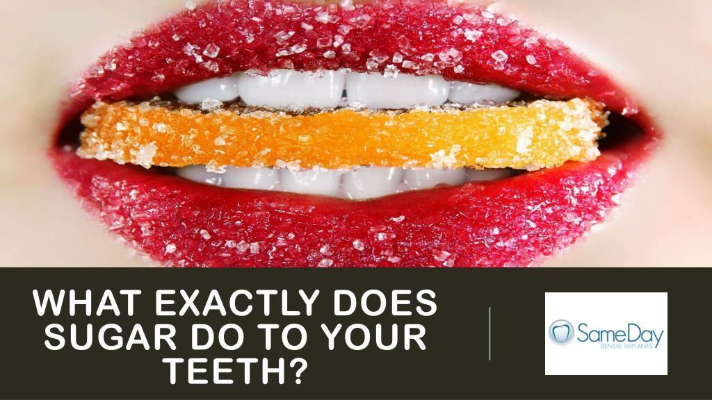 what does too much sugar do to your teeth