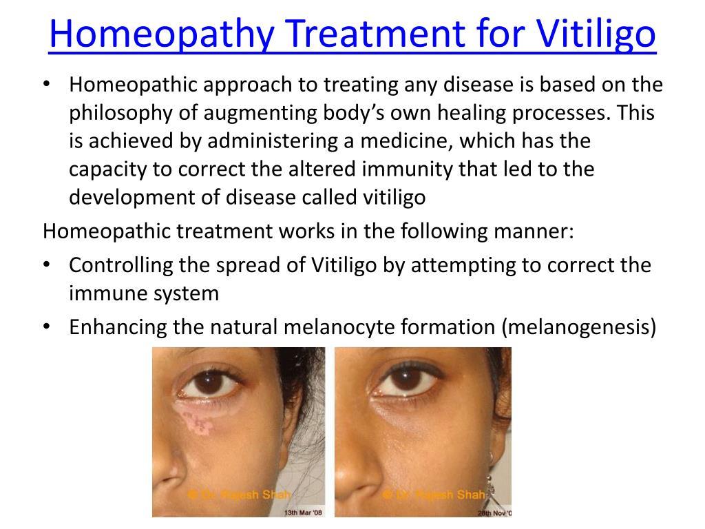 Does Homeopathy Work For Vitiligo