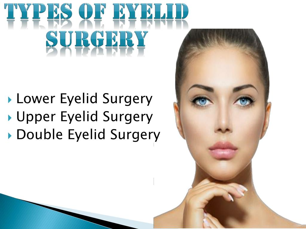 PPT - Gregory Casey Naples, FL | Eyelid Surgery PowerPoint ...