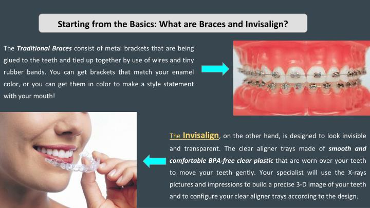 ppt starting from the basics what are braces and invisalign