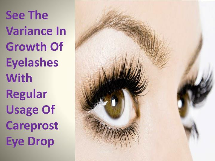 da9a0cd15f5 See The Variance In Growth Of Eyelashes With Regular Usage Of Careprost Eye  Drop - PowerPoint PPT Presentation