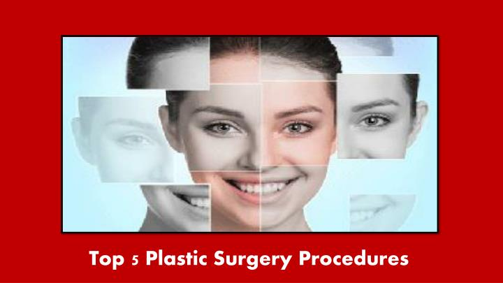 top 5 plastic surgery procedures n.