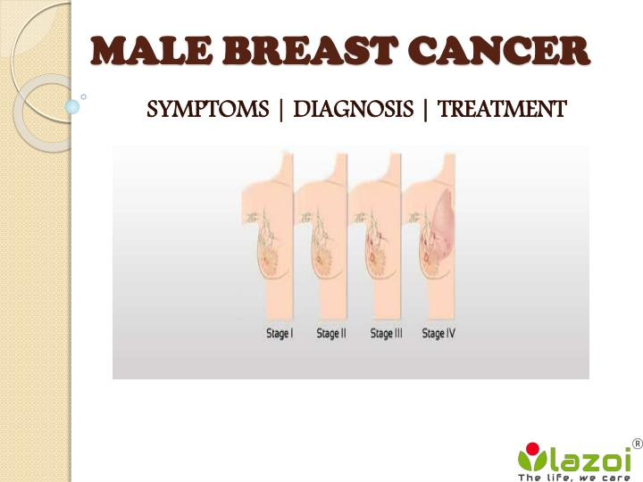 Ppt Male Breast Cancer Symptoms Diagnosis And Treatment