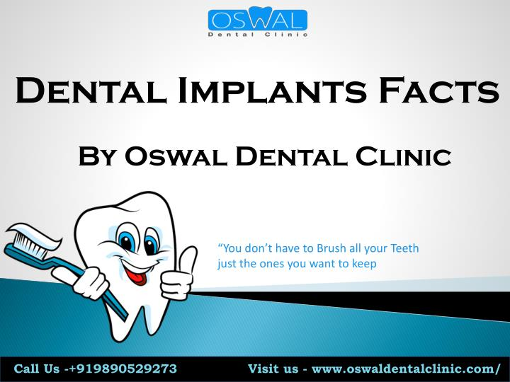 dental implants facts n.