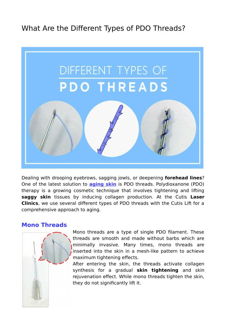 PPT - What Are the Different Types of PDO Threads