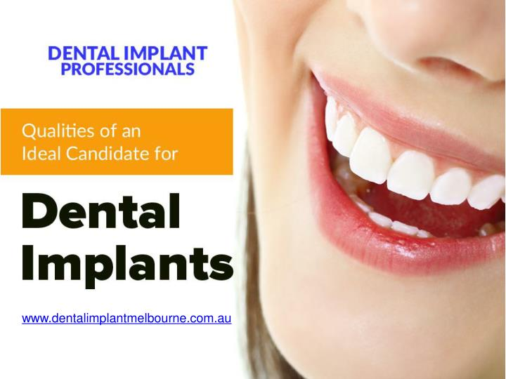 qualities of an ideal candidate for dental implants n.