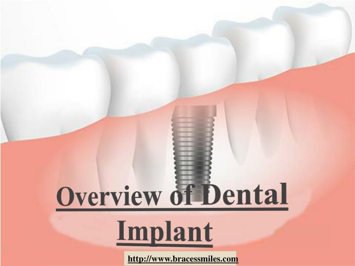 overview of dental implant n.