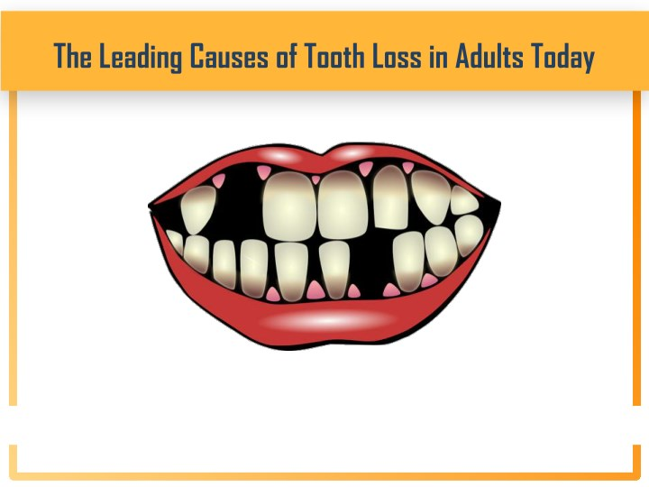PPT - The Leading Causes of Tooth Loss in Adults Today PowerPoint  Presentation - ID:7617428