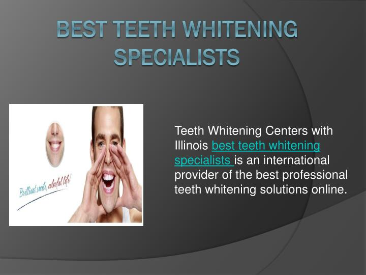 best teeth whitening specialists n.