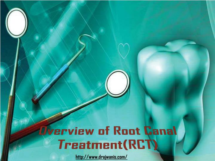 overview of root canal treatment rct n.