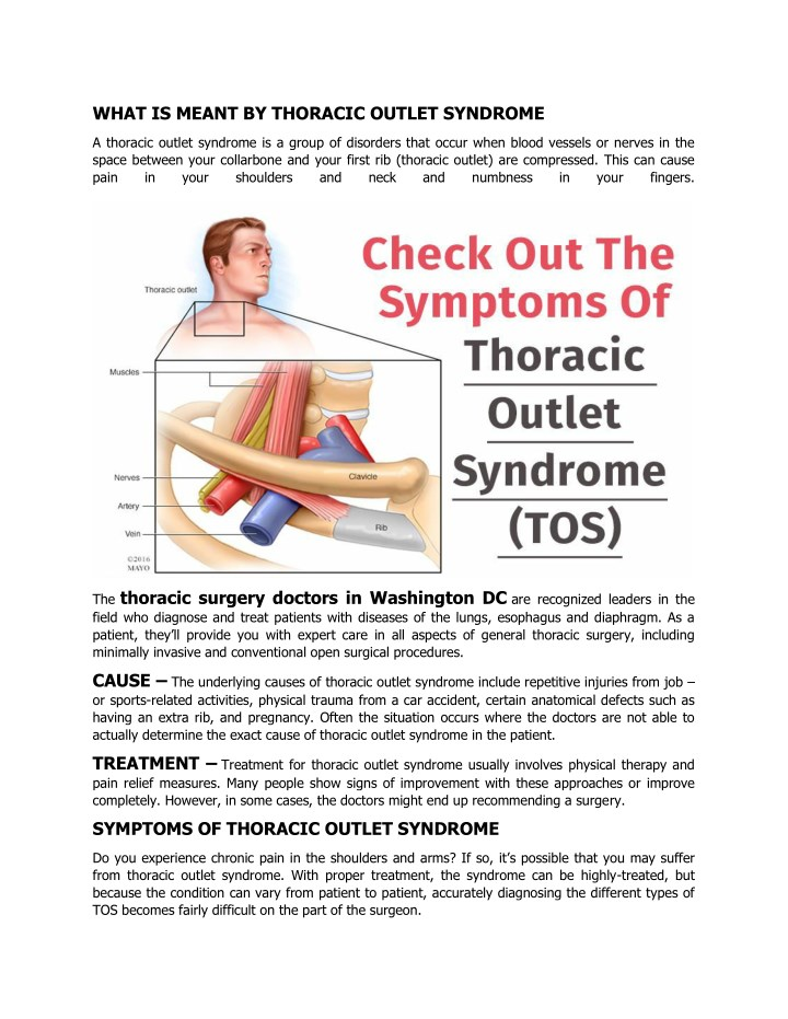 what is meant by thoracic outlet syndrome n.