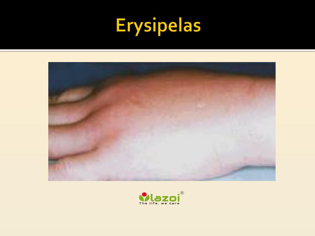 Erysipelas of the leg: symptoms, prevention, treatment 23