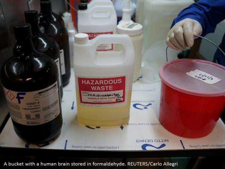 A bucket with a human brain stored in formaldehyde. REUTERS/Carlo Allegri