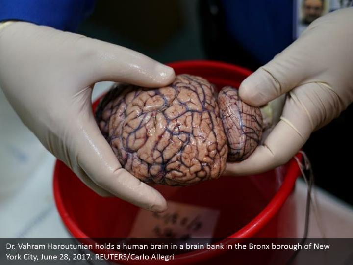 Dr. Vahram Haroutunian holds a human brain in a brain bank in the Bronx borough of New York City, June 28, 2017. REUTERS/Carlo Allegri