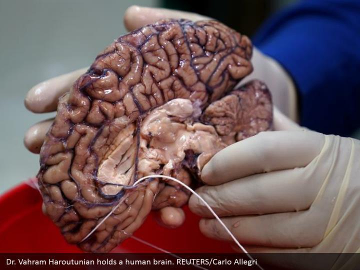 Dr. Vahram Haroutunian holds a human brain. REUTERS/Carlo Allegri