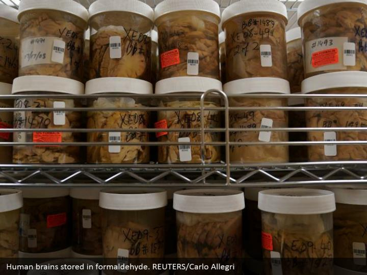 Human brains stored in formaldehyde. REUTERS/Carlo Allegri
