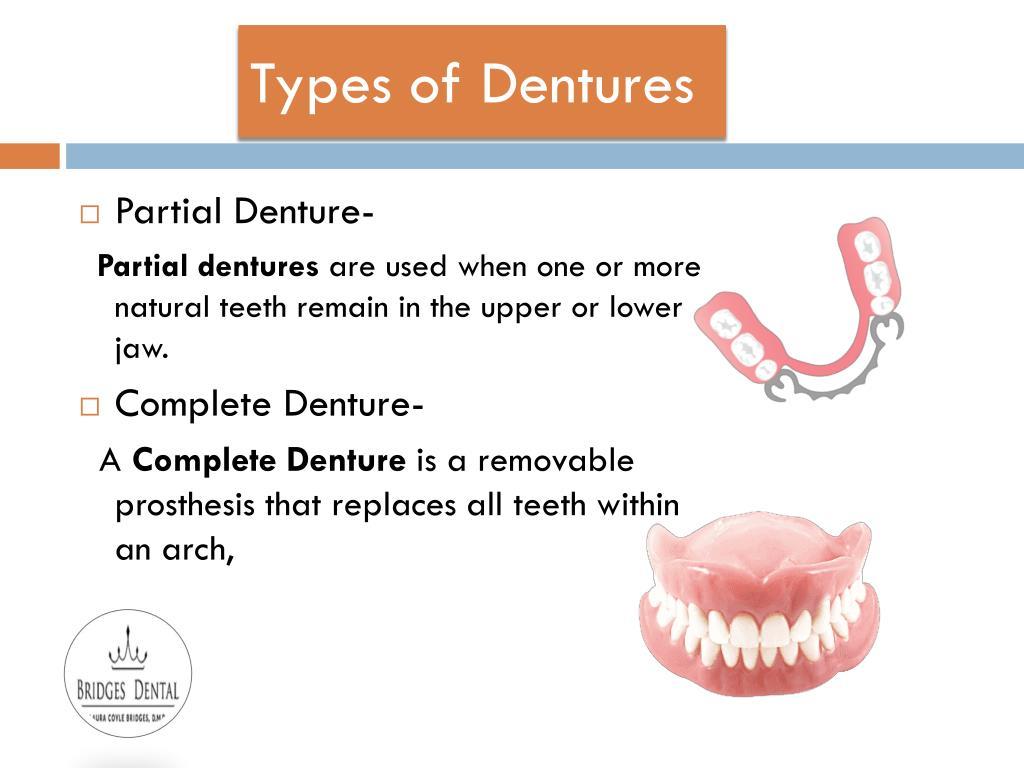 PPT - Denture Care Treatment with Brandon Dentist- Bridges